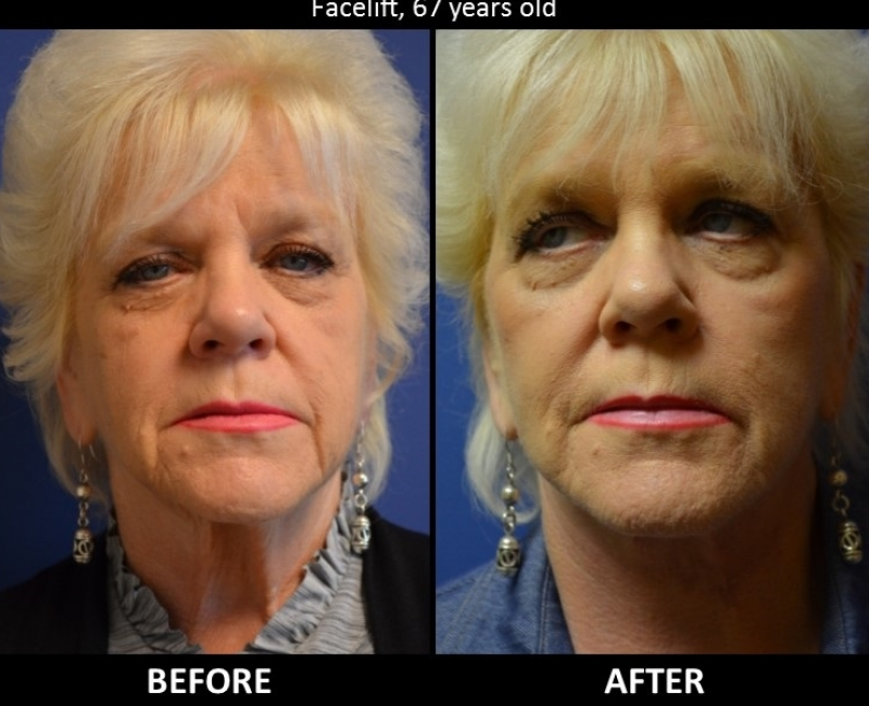 Owsley_Plastic_Surgery_Coeur_d_Alene_Idaho_Facial_Procedures14