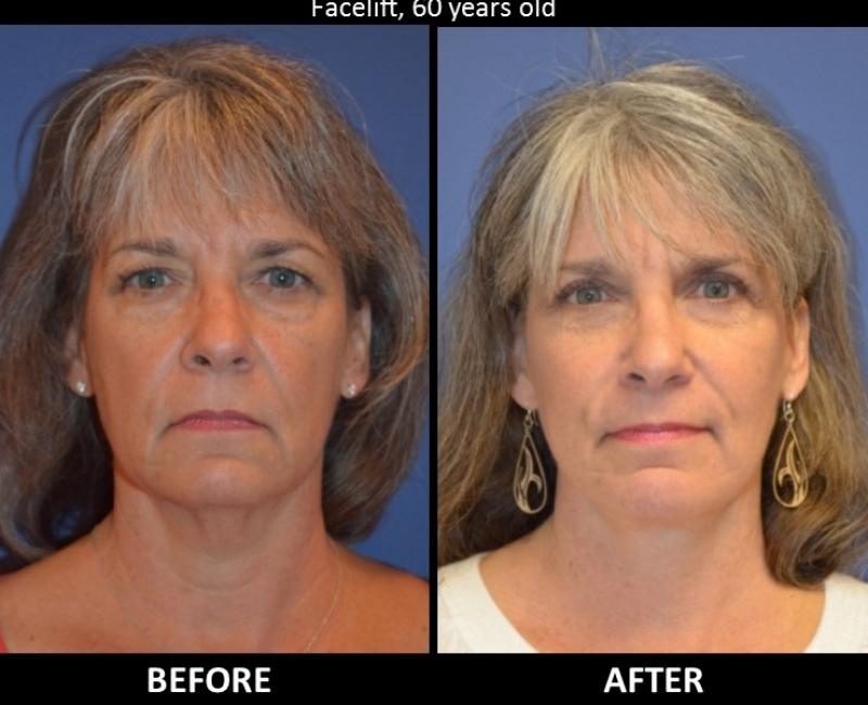 Owsley_Plastic_Surgery_Coeur_d_Alene_Idaho_Facial_Procedures8