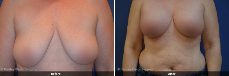 Owsley_Plastic_Surgery_Coeur_d_Alene_Idaho_Facial_Procedures_20