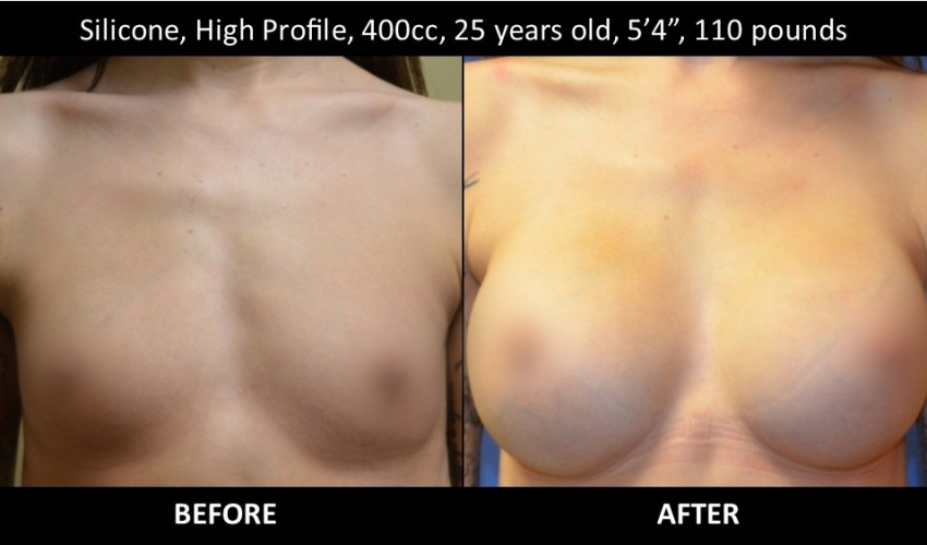 Owsley_Plastic_Surgery_Coeur_d_Alene_Idaho_Facial_Procedures_25