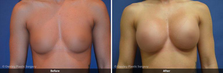 Owsley_Plastic_Surgery_Coeur_d_Alene_Idaho_Facial_Procedures_28