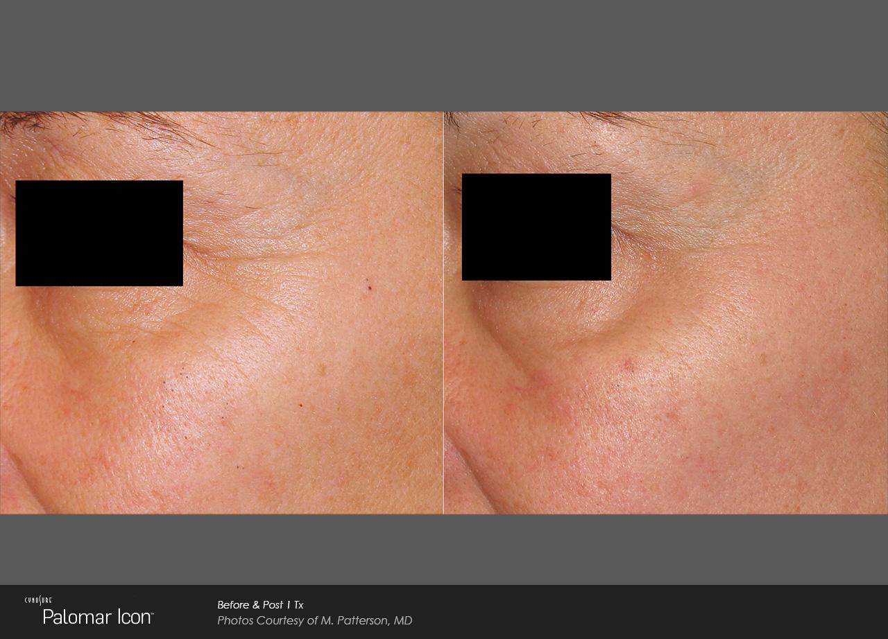 Owsley_Plastic_Surgery_Coeur_d_Alene_Idaho_Icon_Laser_Skin_Resurfacing_Procedures4
