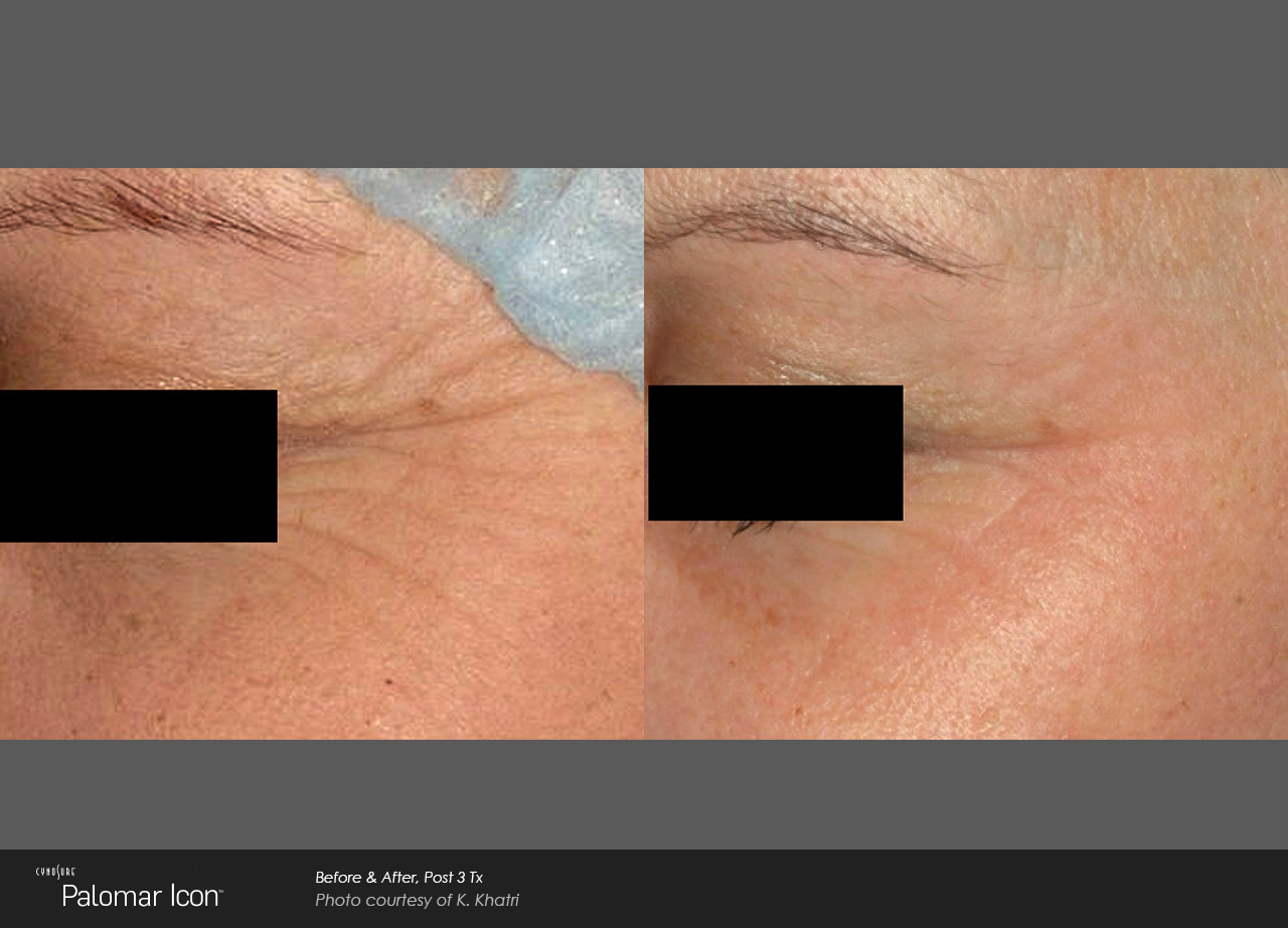 Owsley_Plastic_Surgery_Coeur_d_Alene_Idaho_Icon_Laser_Skin_Resurfacing_Procedures6
