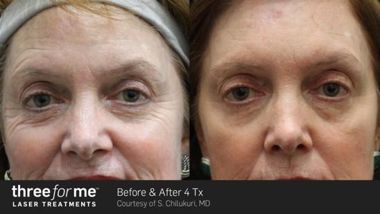 Owsley_Plastic_Surgery_Coeur_d_Alene_Idaho_Icon_Laser_Skin_Resurfacing_Procedures7