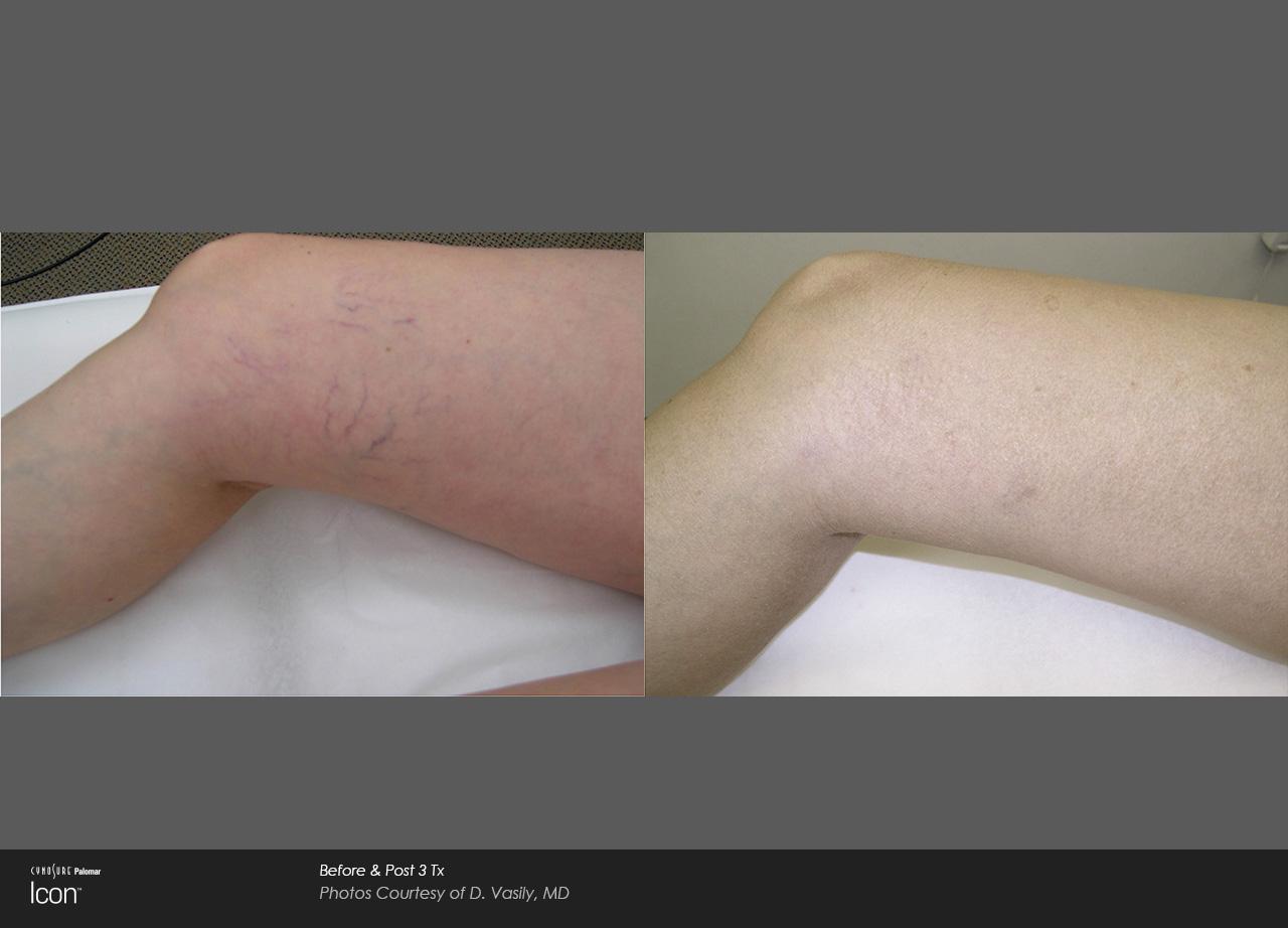 Owsley_Plastic_Surgery_Coeur_d_Alene_Idaho_Icon_Laser_Skin_Resurfacing_Procedures8