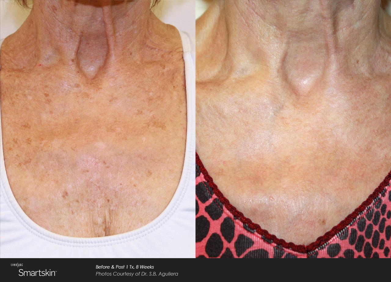 Owsley_Plastic_Surgery_Coeur_d_Alene_Idaho_SmartSkin+_Laser_Skin_Resurfacing_Procedures1