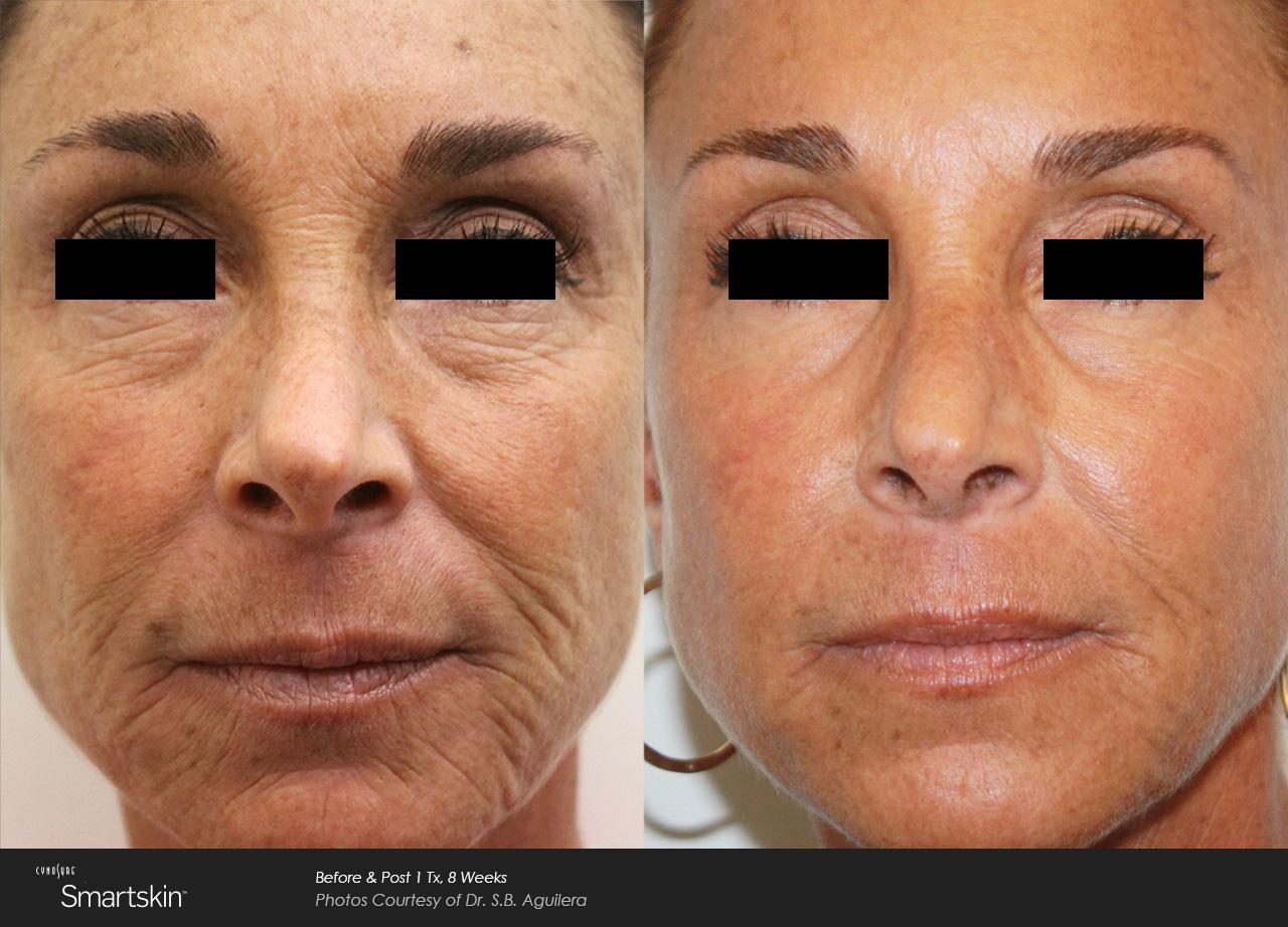 Owsley_Plastic_Surgery_Coeur_d_Alene_Idaho_SmartSkin+_Laser_Skin_Resurfacing_Procedures2