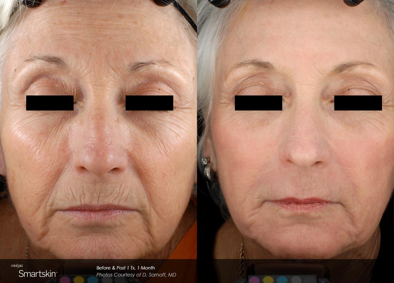 Owsley_Plastic_Surgery_Coeur_d_Alene_Idaho_SmartSkin+_Laser_Skin_Resurfacing_Procedures4