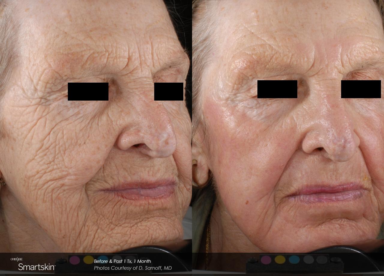 Owsley_Plastic_Surgery_Coeur_d_Alene_Idaho_SmartSkin+_Laser_Skin_Resurfacing_Procedures5