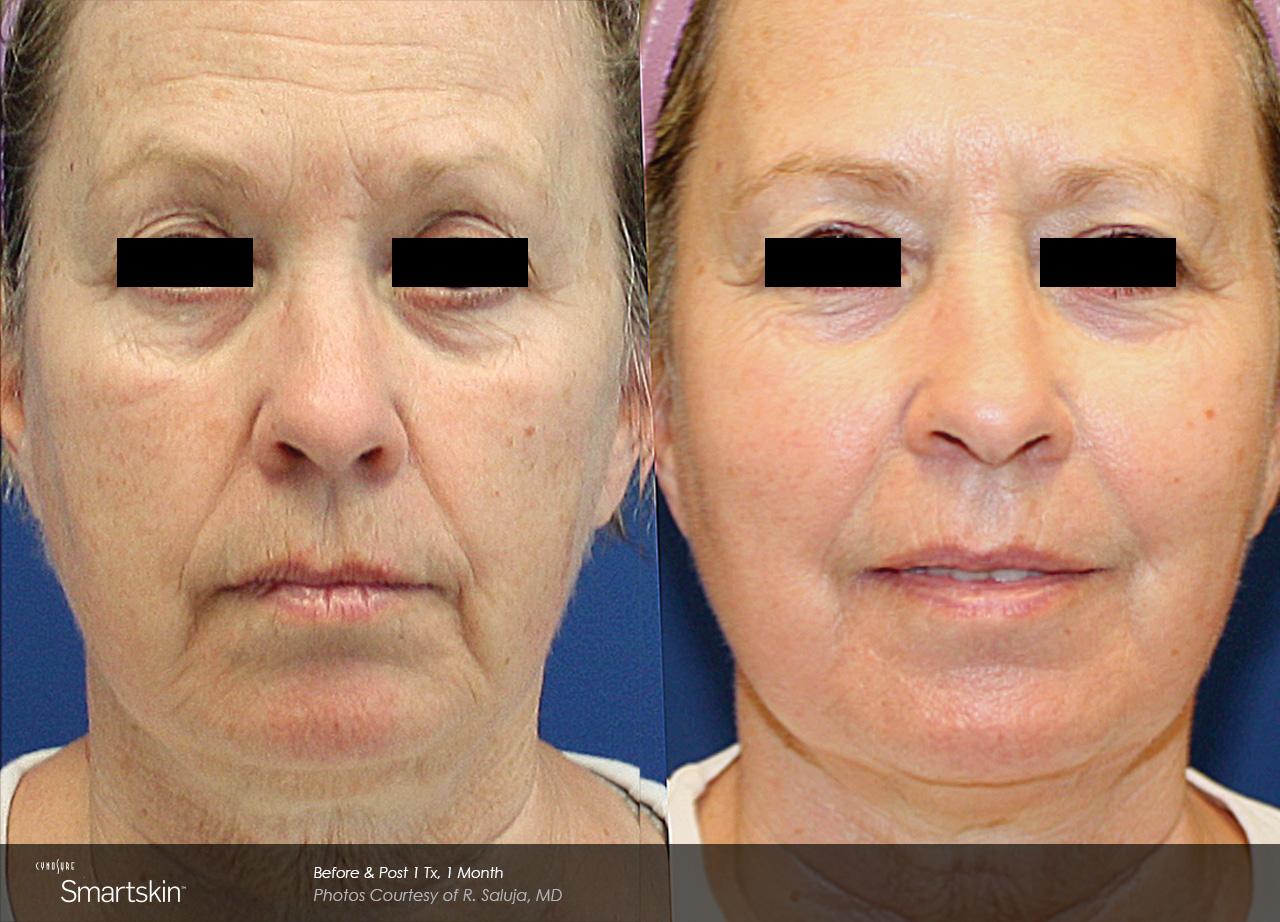 Owsley_Plastic_Surgery_Coeur_d_Alene_Idaho_SmartSkin+_Laser_Skin_Resurfacing_Procedures6