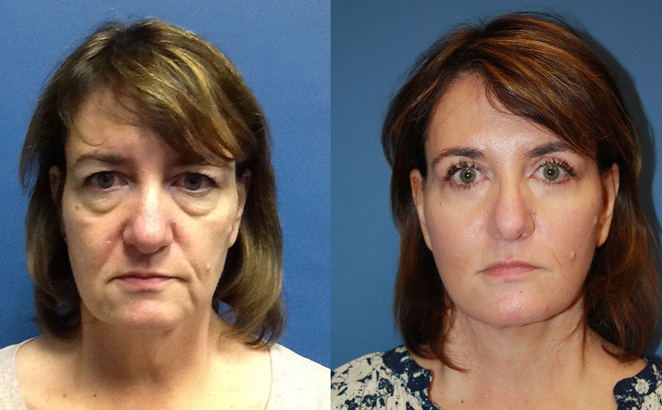 Owsley_Plastic_Surgery_Coeur_d_Alene_Idaho_Facelift_Procedure1