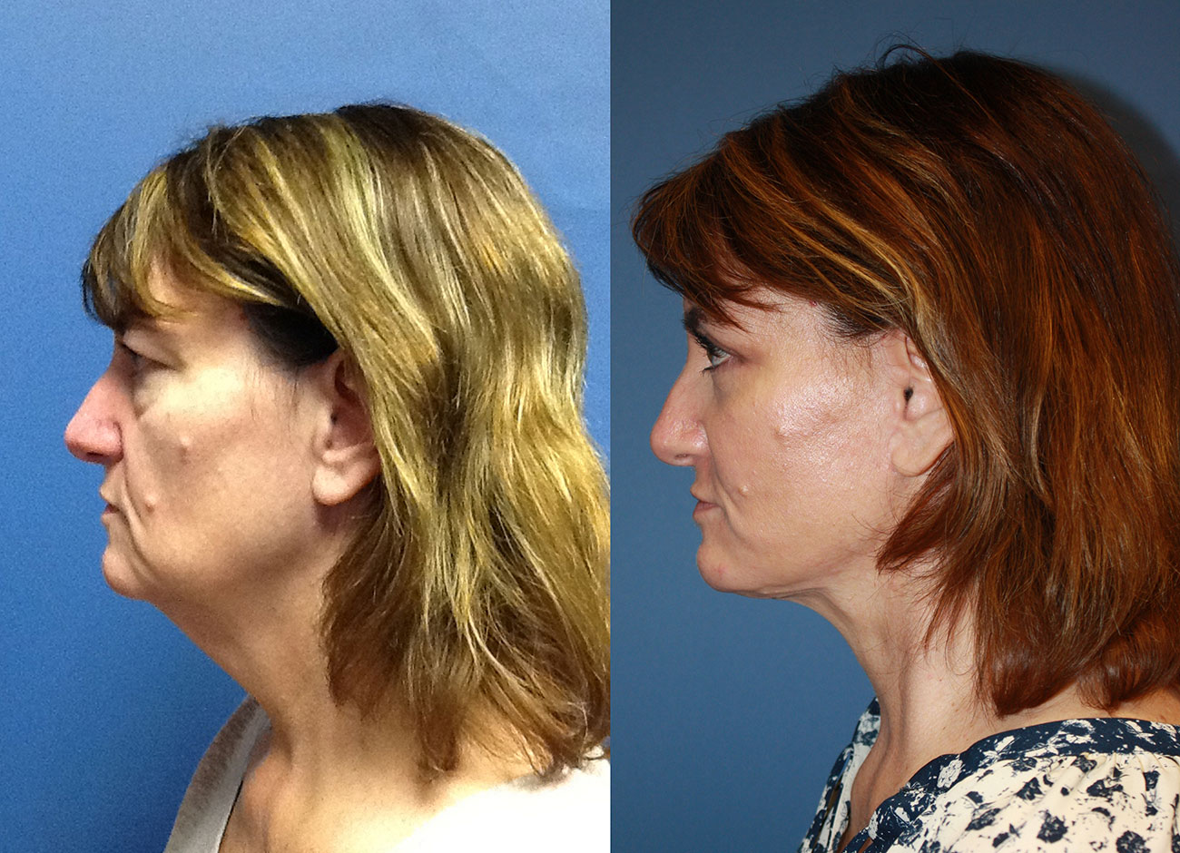Owsley_Plastic_Surgery_Coeur_d_Alene_Idaho_Facelift_Procedure2