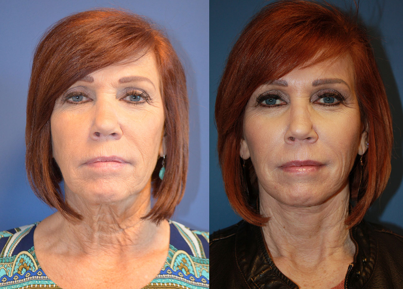 Owsley_Plastic_Surgery_Coeur_d_Alene_Idaho_Facelift_Procedure3