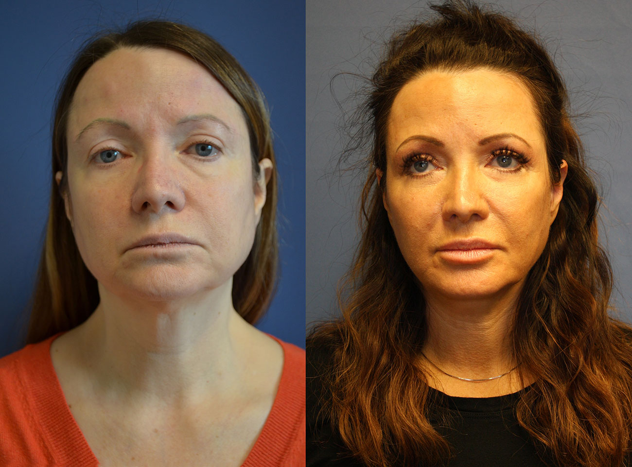 Owsley_Plastic_Surgery_Coeur_d_Alene_Idaho_Facelift_Procedure4