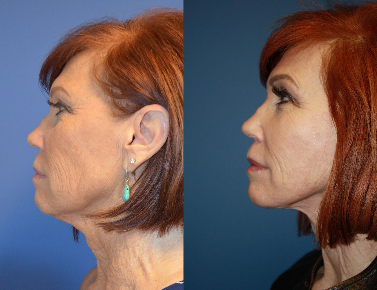 Owsley_Plastic_Surgery_Coeur_d_Alene_Idaho_Facelift_Procedure5