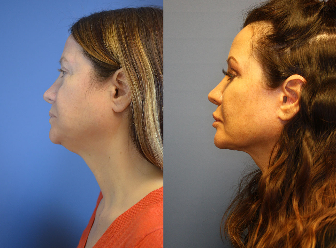 Owsley_Plastic_Surgery_Coeur_d_Alene_Idaho_Facelift_Procedure6